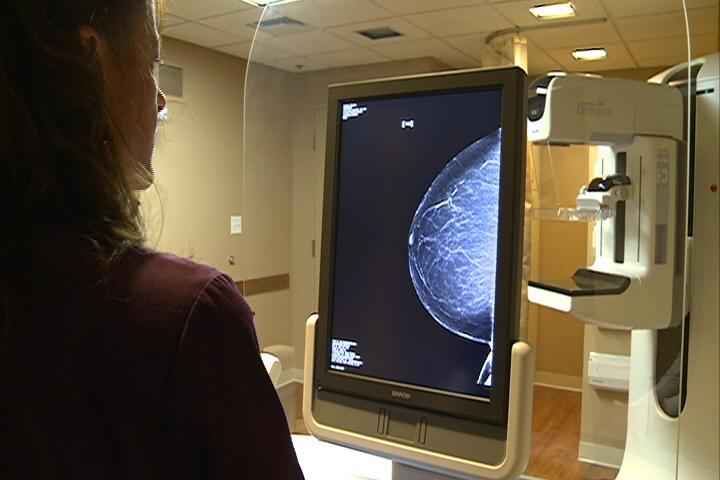 best mammogram machine
